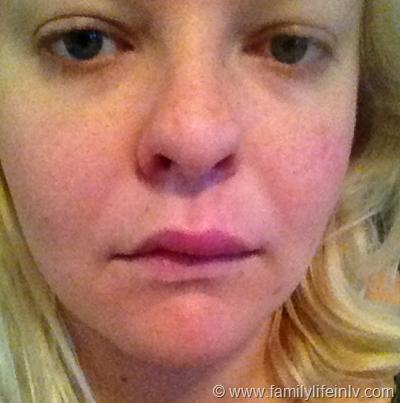 """""""food allergy"""" """"Swollen lip"""" """"Pregnancy Allergy"""""""
